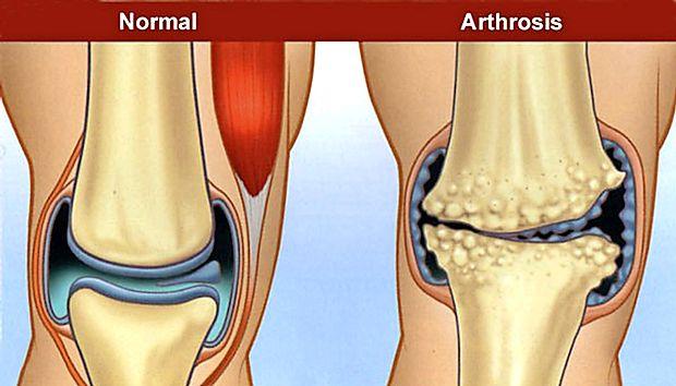 boli sistemice ale manifestărilor pielii țesutului conjunctiv