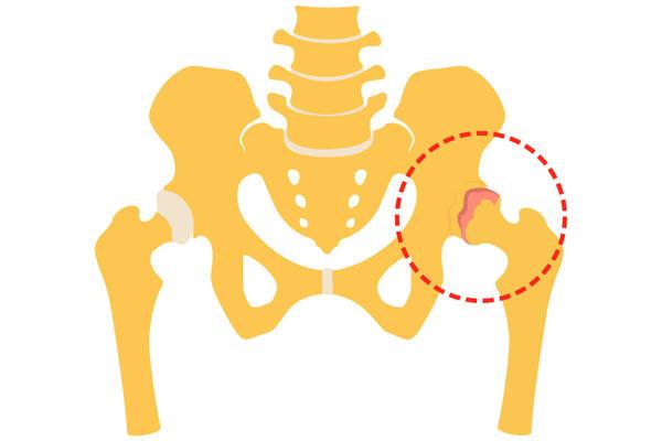 Tratament posttraumatic al durerii genunchiului