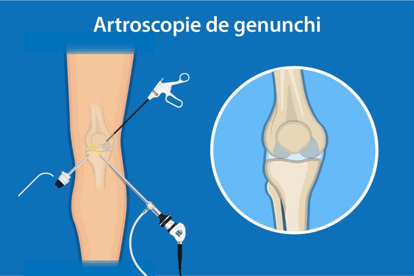 cum să tratezi blocajul genunchiului durere pe partea genunchiului asta