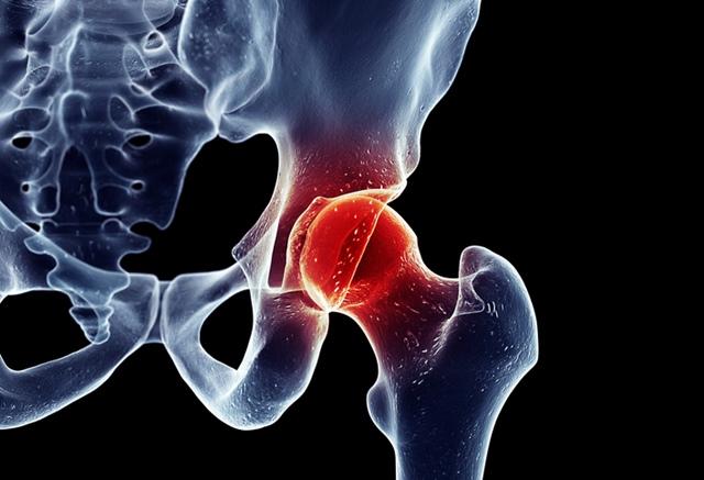 o articulație de șold mă doare în picior
