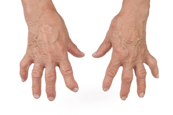 Artrita articulațiilor de pe degete