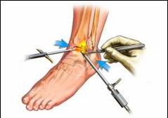 artroza tratamentului gleznei
