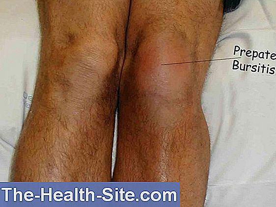 bursita articulației piciorului