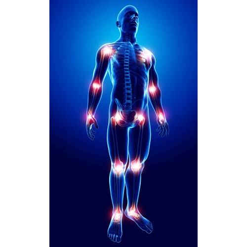tratamentul cu acid succinic al artrozei