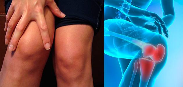 curs de tratament al artrozei genunchiului