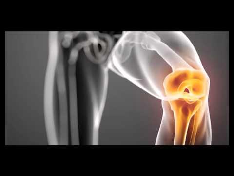artroza articulației uncovertrale