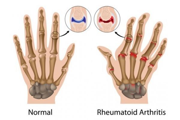 când articulațiile la nivelul picioarelor doare medicamente și unguente pentru durerile articulare