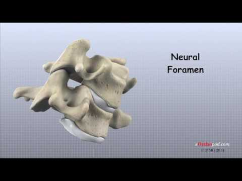 artroza deformantă a gradului 1 al articulației șoldului durere în spatele tratamentului articulației genunchiului