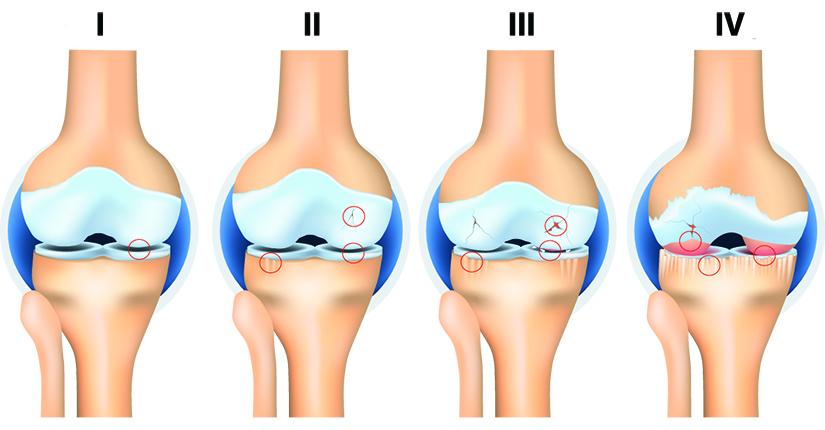 câte grade are artroza genunchiului