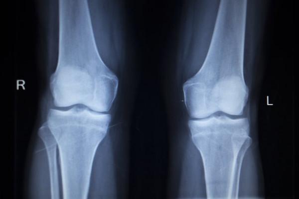 dureri de zbor în oase și articulații noi preparate comune