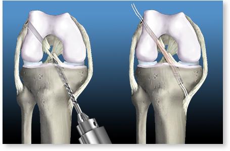 fotbal cu artroza genunchiului cum se vindecă o articulație pentru artroză