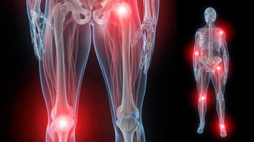 la a 35-a săptămână articulațiile mâinilor doare