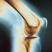 tratamentul durerilor de genunchi cu homeopatie artrita și tratamentul durerii prin artroză