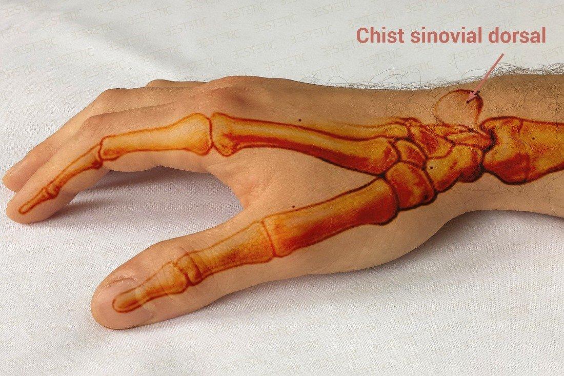 cauze ale artrozei articulațiilor mici ale piciorului