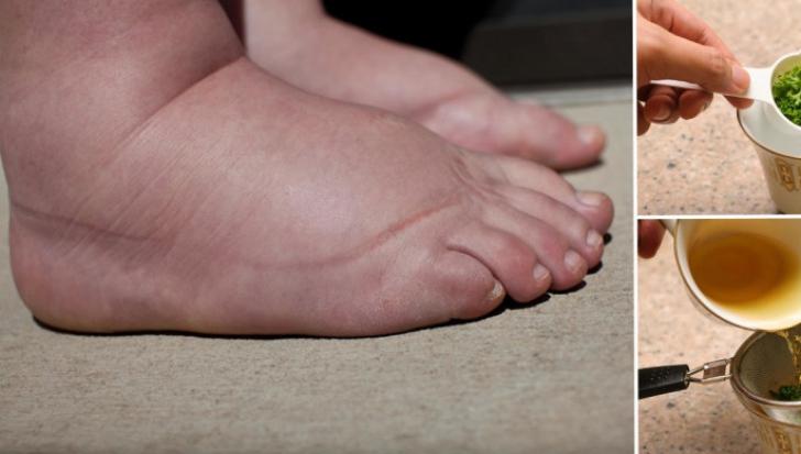 Picioare vinete