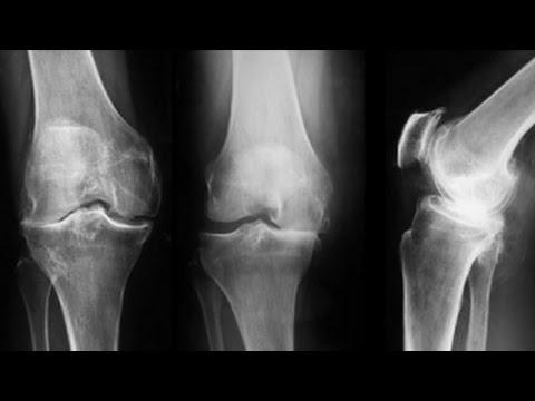 ce să străpunzi cu artroza articulațiilor genunchiului