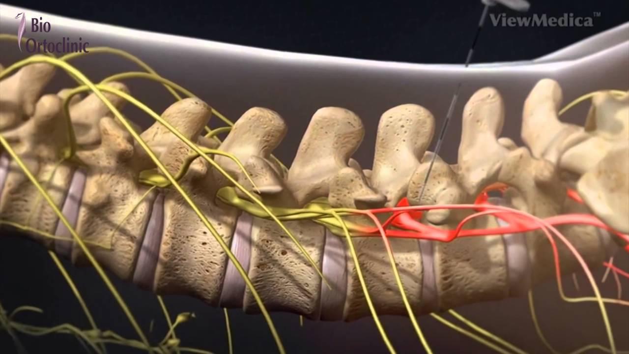 infiltratii lombare deteriorarea ligamentelor genunchiului cât de multe se vindecă