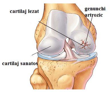 artroza șoldului - ce este