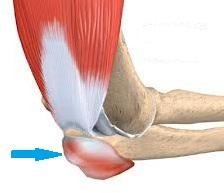 durere la bursita cotului cel mai bun remediu pentru artroza articulației umărului