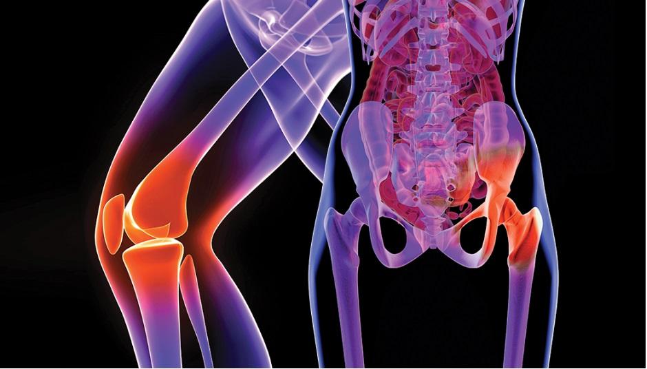 durere fesieră care radiază spre articulație