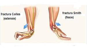 tratamentul forumului artrozei deformante durere la glezna la care medicul