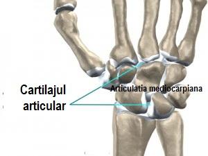 Am artroza tuturor articulațiilor
