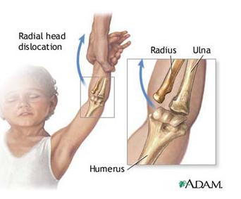 interiorul articulației cotului doare după tragere în sus dureri de cot la ridicarea greutăților