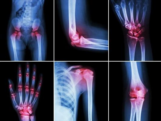 deformarea osteoporozei tratamentului articulației umărului