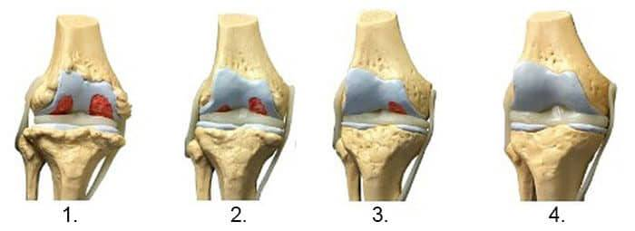 artroza generalizată a tuturor articulațiilor