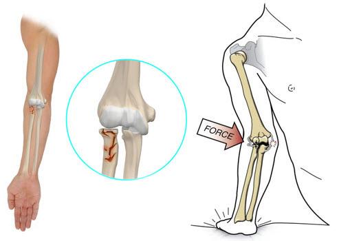 recuperare după o fractură în articulația cotului cremă sau unguent pentru osteochondroză