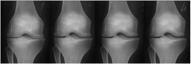 articulații dureroase de răsucire musculară