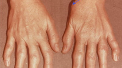 tratamentul artrozei cu 2 degete tratamentul simptomelor inflamației țesutului conjunctiv