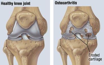 tratamentul osteoartritei genunchiului cu ozokerită
