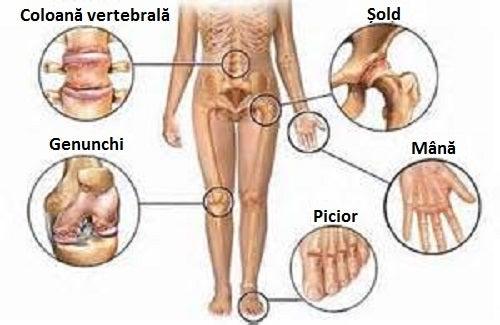 tratamentul eficient al bolilor articulare utilizarea diprospanului pentru durerile articulare