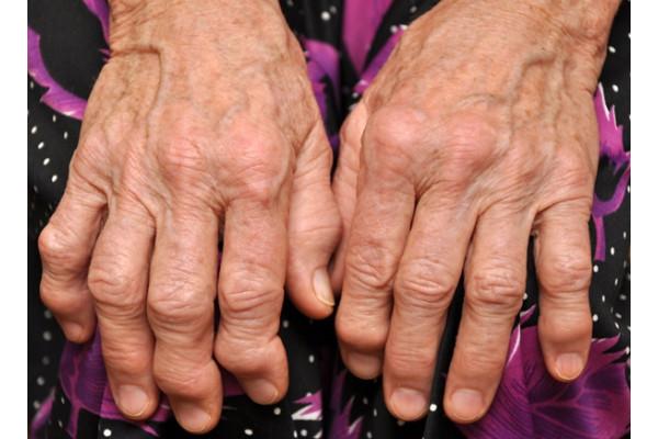 cu artrita reumatoidă a mâinilor unguent anestezic pentru articulații și ligamente