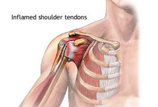 leziuni musculare ale articulației umărului radiologie pentru durerile articulare