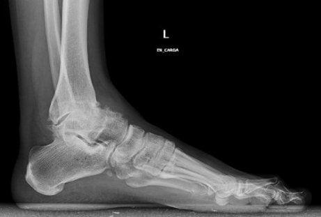 exacerbarea simptomelor osteoartritei gleznei durerea în toate articulațiile a crescut bilirubina