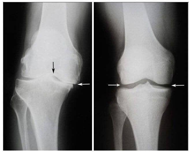 ce este inflamația articulațiilor picioarelor articulațiile și tendoanele doare