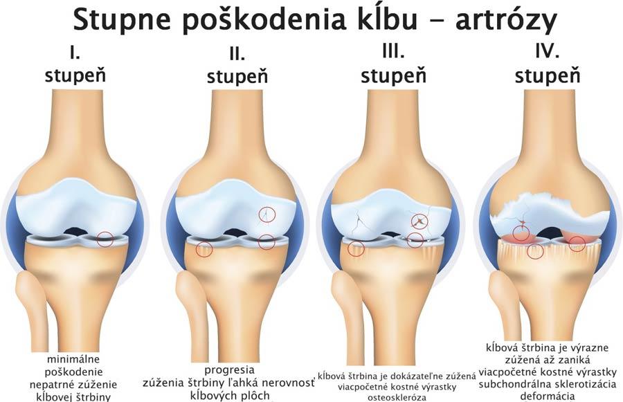 artroza dansului genunchiului care tratează artrita umăr-umăr