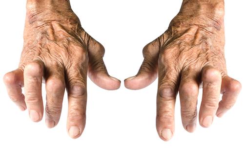 artrita tratamentului articulațiilor mici