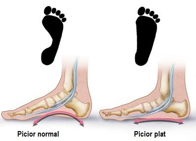 ce să faci cu inflamația articulației piciorului