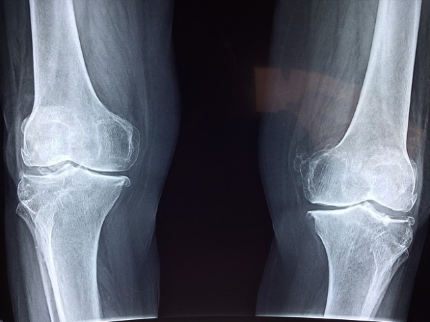 luxația durerii genunchiului