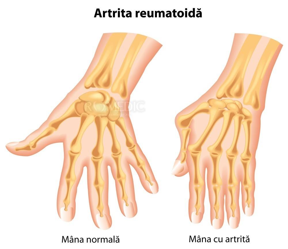 medicamente pentru tratamentul artritei de mână tratamentul forum al artrozei articulației șoldului