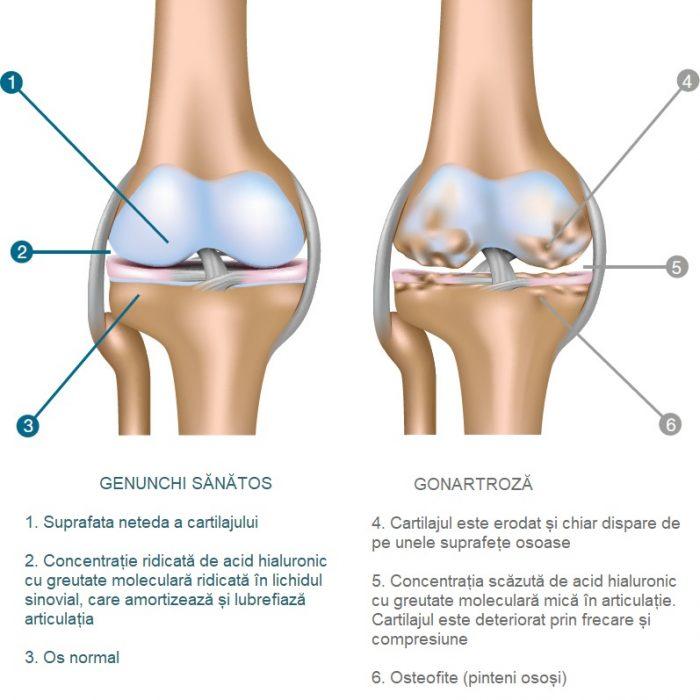tratamentul cu acid hialuronic al artrozei genunchiului