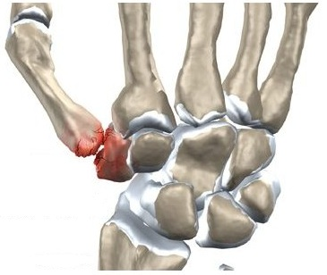 durere acută în articulația mâinii drepte dureri articulare severe dureri de cap