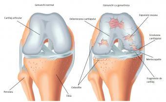 osteoartrita genunchiului spasme și dureri în mușchi și articulații