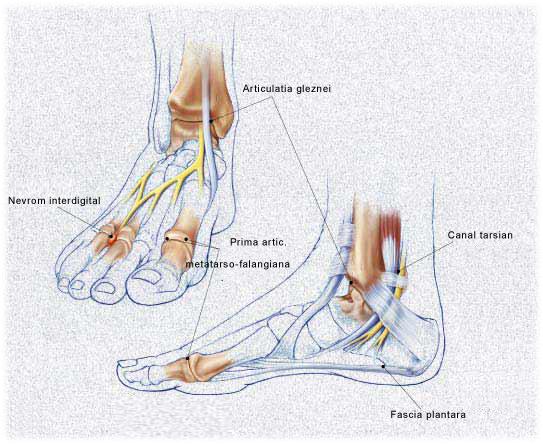 tratamentul artrozei 1 2 grade a articulației gleznei