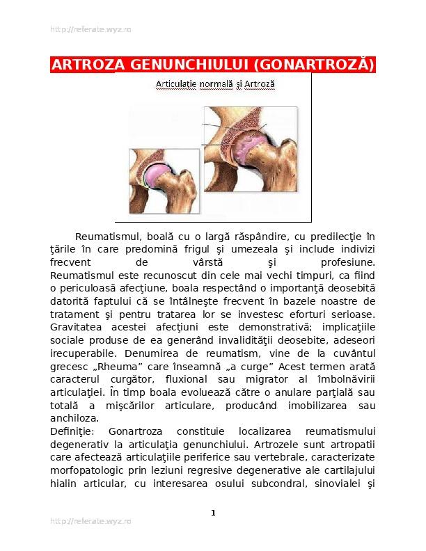 osteochondroza articulației umărului decât a trata