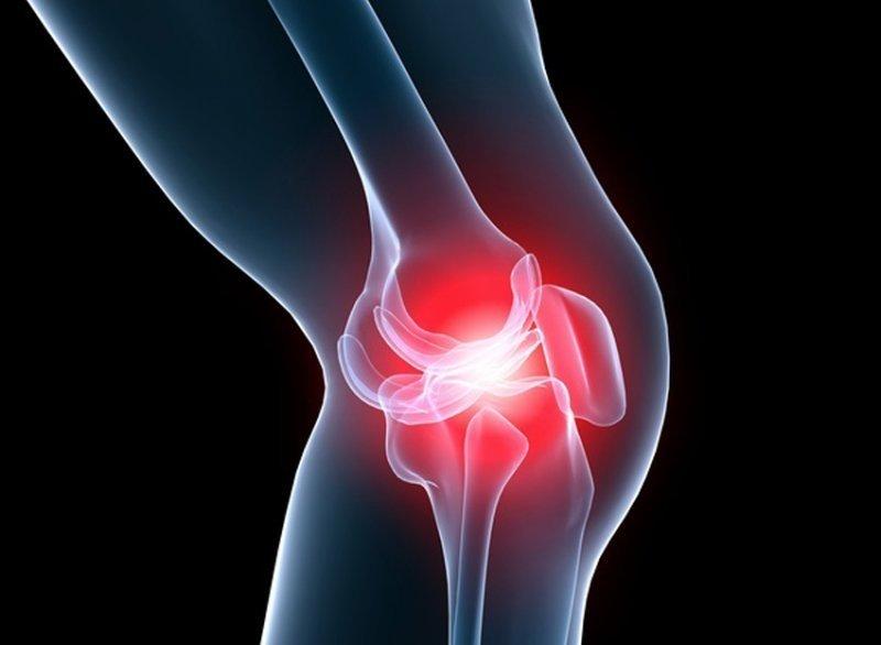 Se vindecă artrita la genunchi