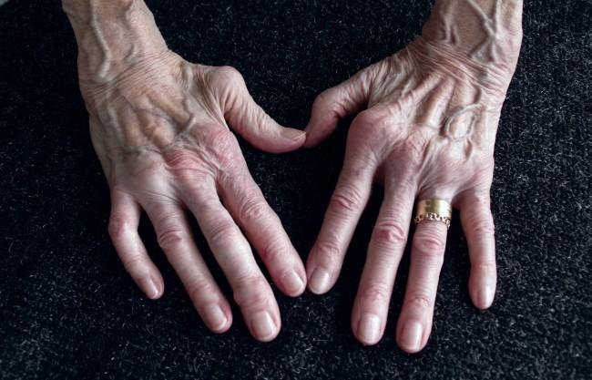 artrita reumatoidă a degetelor durere acută în articulația mâinii drepte